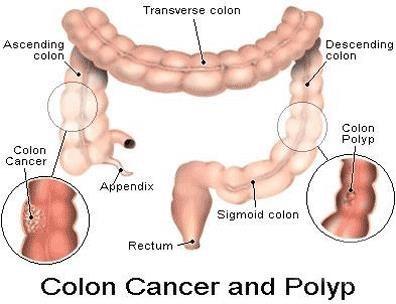 Ung thư ruột già (Colon cancer)