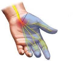 Tê bàn tay-carpal tunnel syndrome