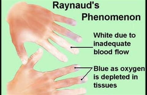 Chứng Bệnh RAYNAUD