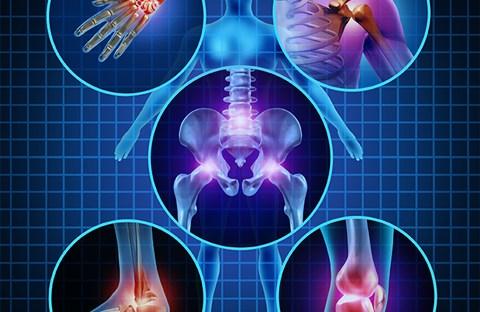 Chẩn đoán và điều trị bệnh viêm xương khớp