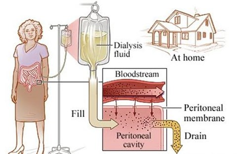Tìm hiểu vấn đề lọc máu