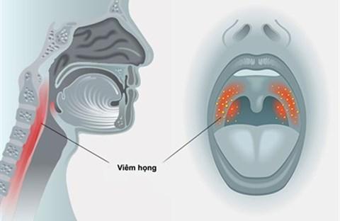 Triệu chứng và phòng ngừa viêm họng