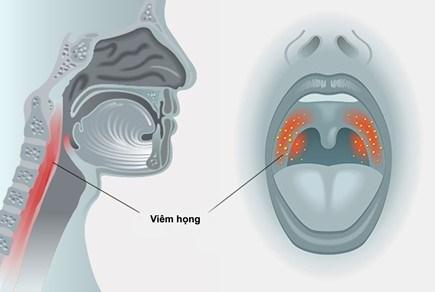 Triệu chứng và phòng ngừa viêm họng - 1