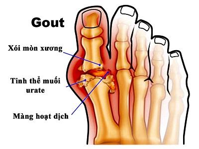 Bệnh gout là gì? - 3