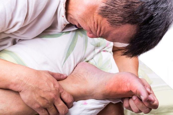Bệnh gout - 1