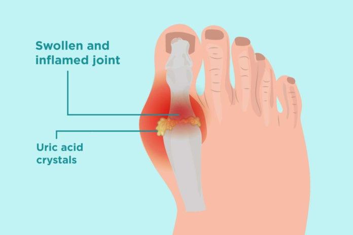 Bệnh gout - 3