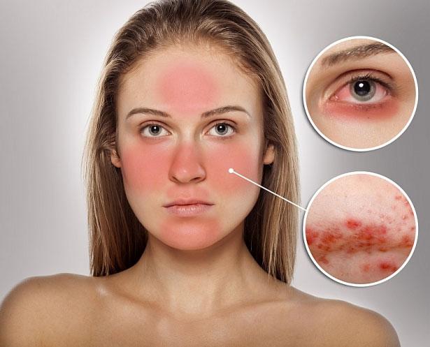 Những bệnh về da dễ mắc trong nắng nóng mùa hè - 2