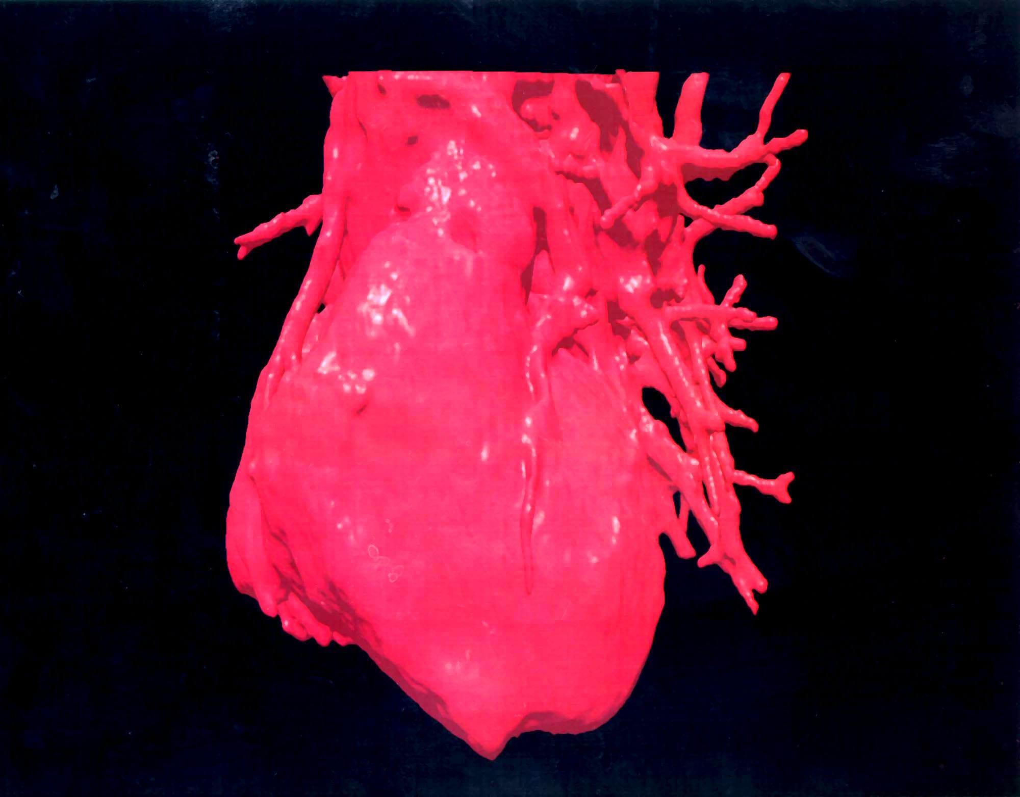 Phẫu thuật thông tim - 2