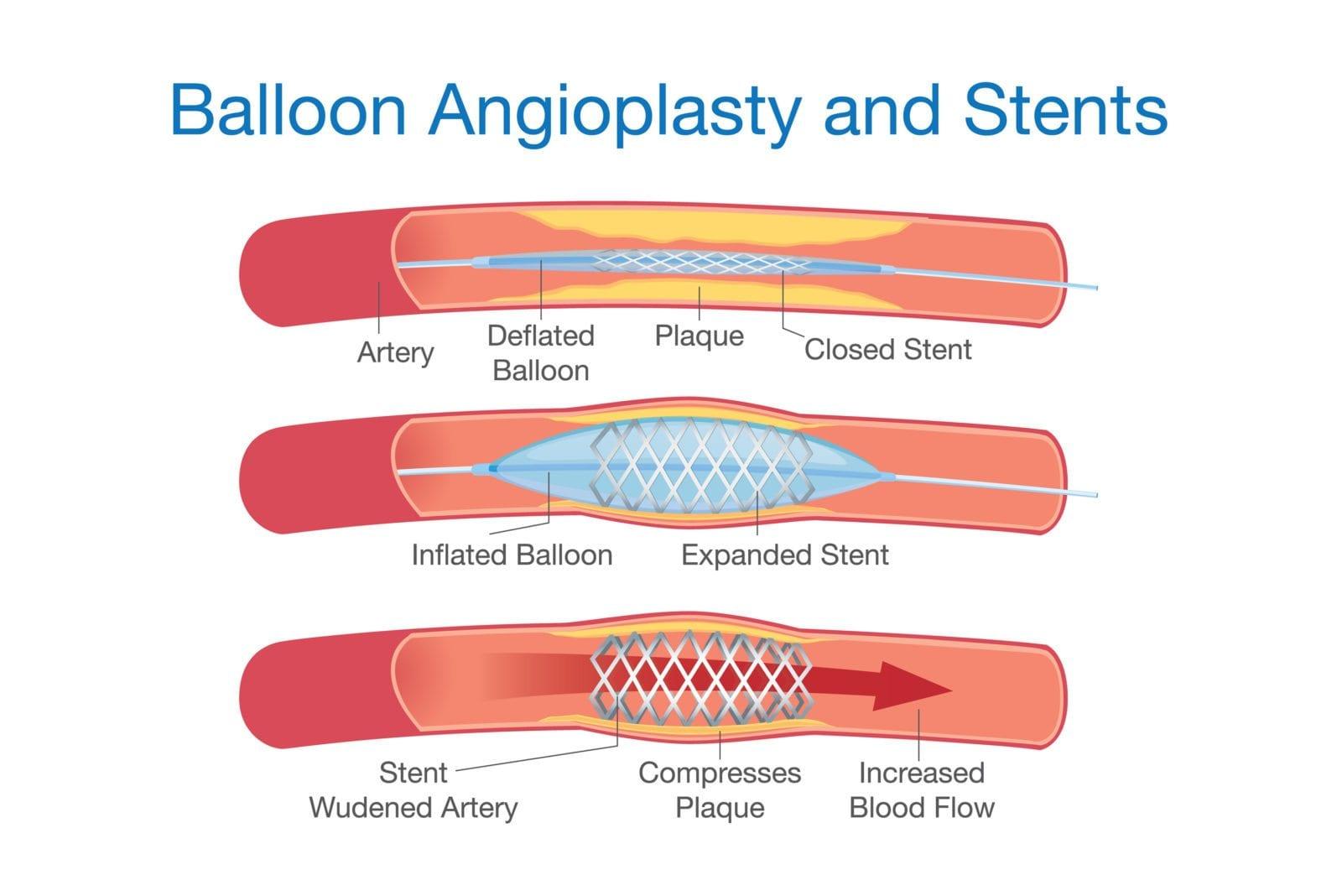 Phẫu thuật thông tim - 1