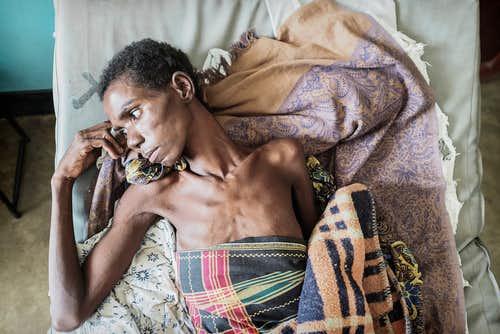 10 đại dịch tồi tệ nhất trong lịch sử nhân loại - 4