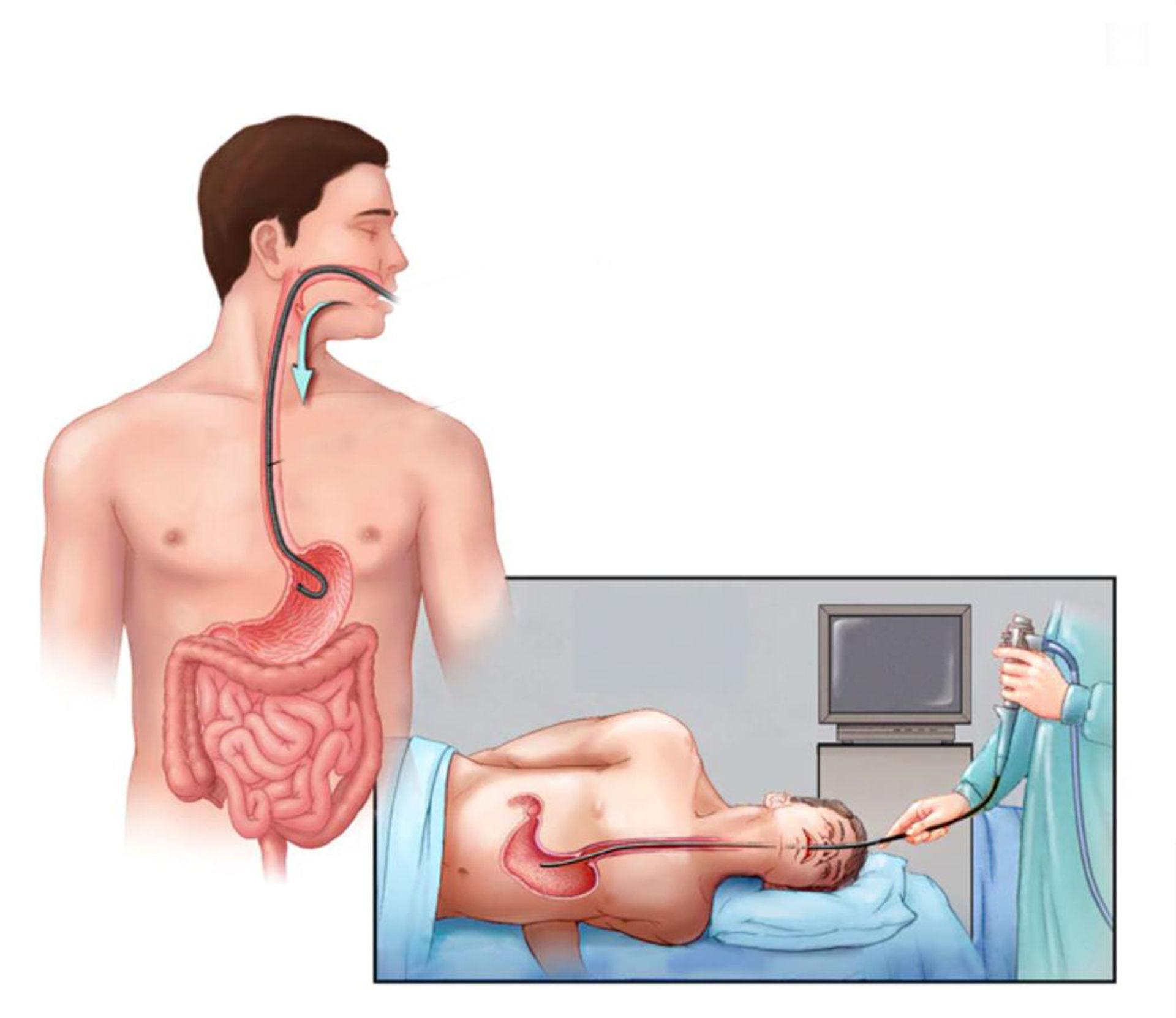 Thuốc chữa bệnh trào ngược thực quản dạ dày - 1